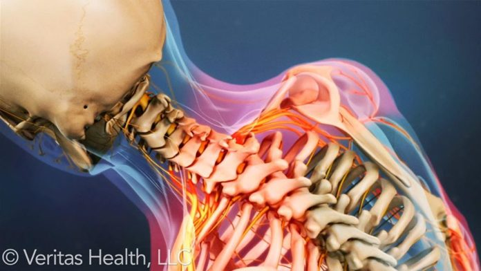 What is The Procedure for Determining The Cervical Disorders?